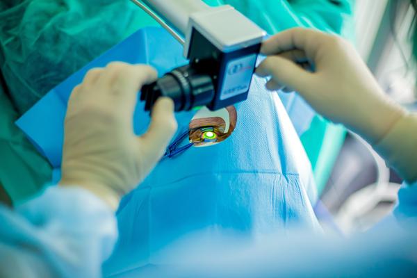 Zabieg cross linking poprawiający stożek rogówki w oku człowieka